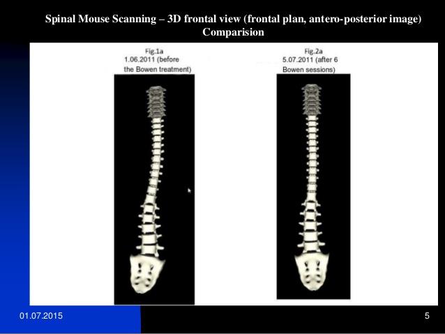bowen-helps-scoliosis-5-638.jpg